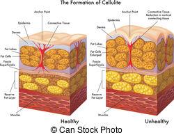 formiranje celulita